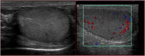 Skrotal ultrason