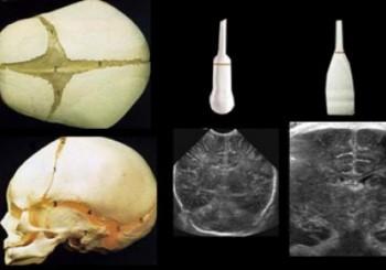 ayrıntılı ultrason