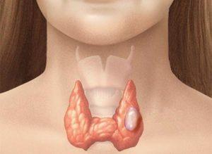 Tiroid Biyopsisi
